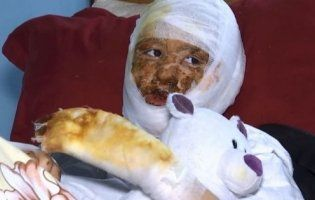 У Чернівцях пиятик підпалив доньку, бо не дозволяла бити матір: подробиці звірячої розправи (фото, відео)