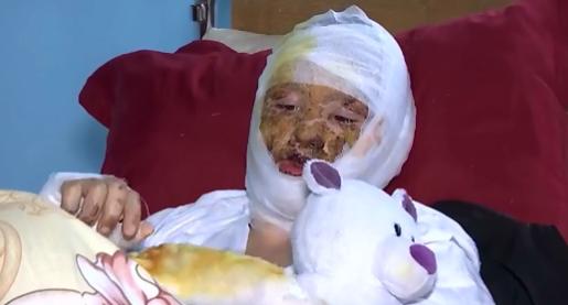 У 16-річної Ані глибокі опіки обличчя, шиї та лівої руки