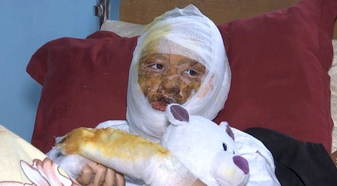 У Чернівцях батько підпалив 16-річну доньку (фото)