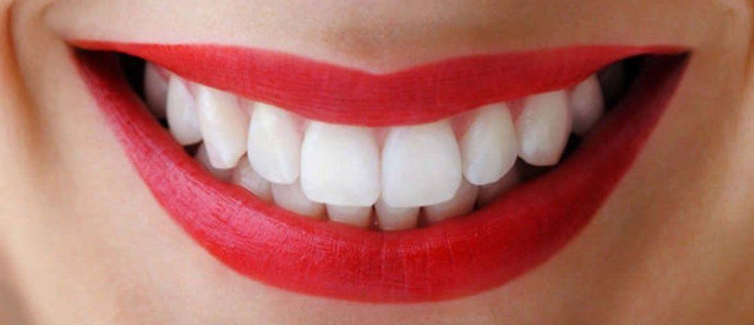 Способи відбілювання зубів