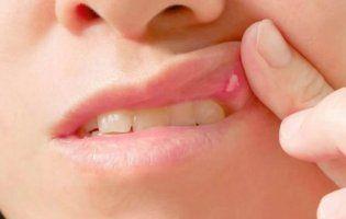 Стоматит: профілактика і лікування