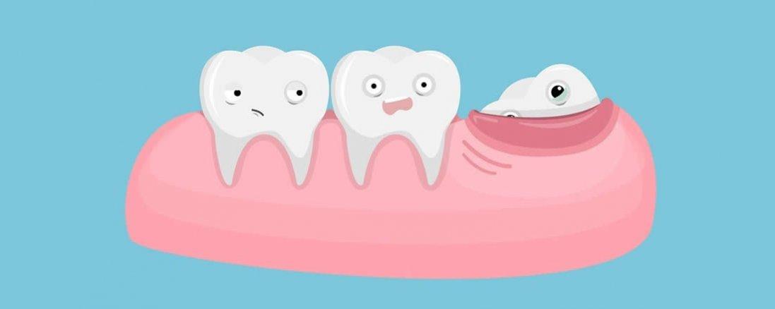 Зуби мудрості: видалити не можна залишити