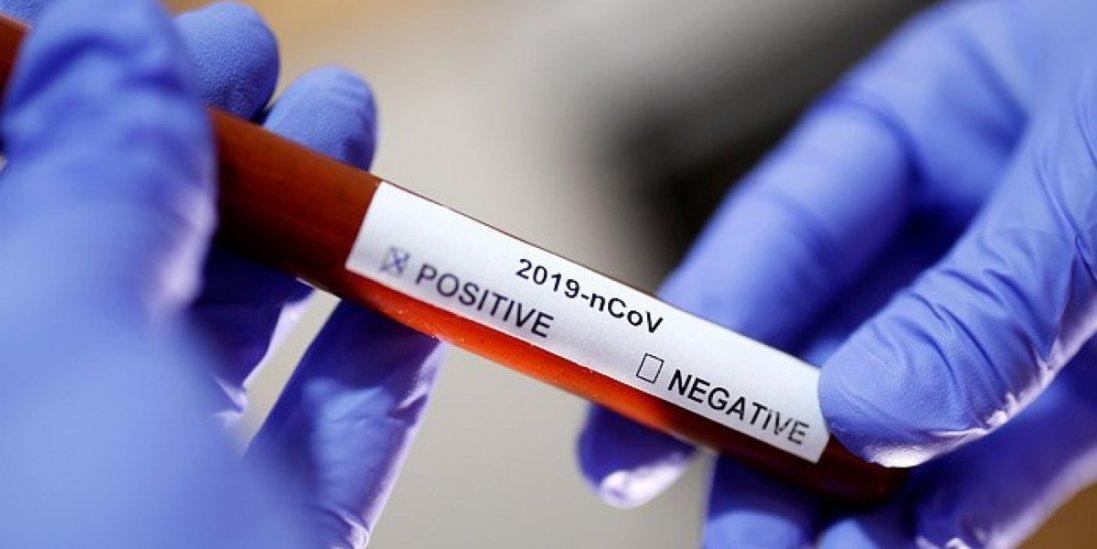 У Києві з'явилися експрес-тести для діагностики коронавірусу
