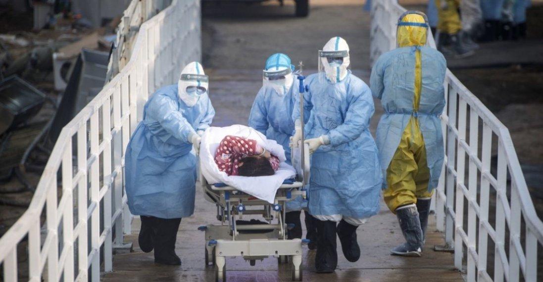 Українка з Житомирщини, хвора на коронавірус, – у важкому стані