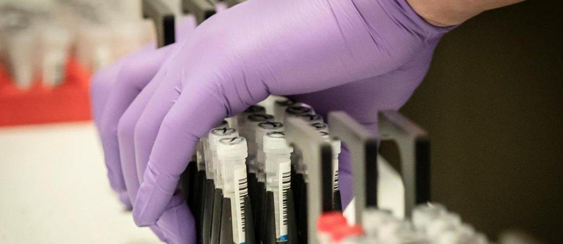 Коронавірус  у Бразилії: заявили про першу смерть