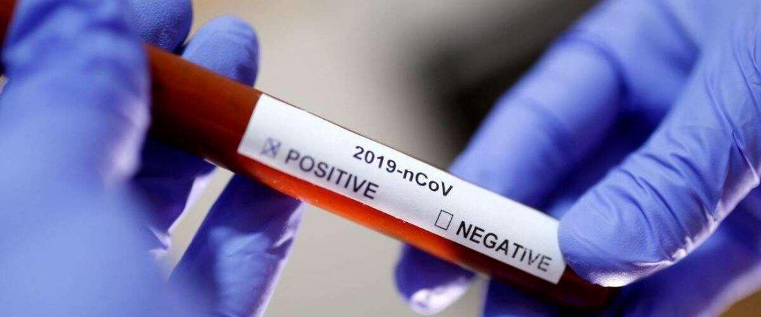 Коронавірус в Києві: лікарі проводитимуть діагностування на дому