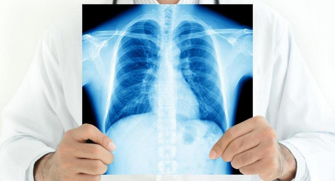Чи будуть хворі на туберкульоз заражати всіх здорових?