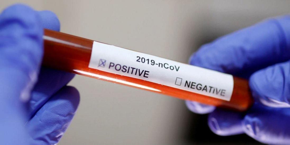 За добу в Італії від коронавірусу померли 743 людини