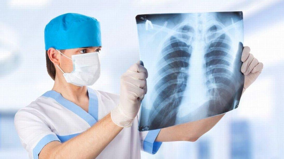 В івано-франківських лікарнях – понад 60 людей з важкою пневмонією