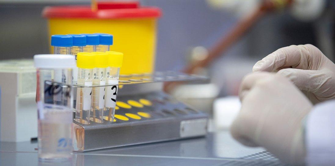 На Чернігівщині – перший підтверджений випадок коронавірусу