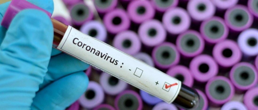 У Херсонській області від коронавірусу померла медсестра