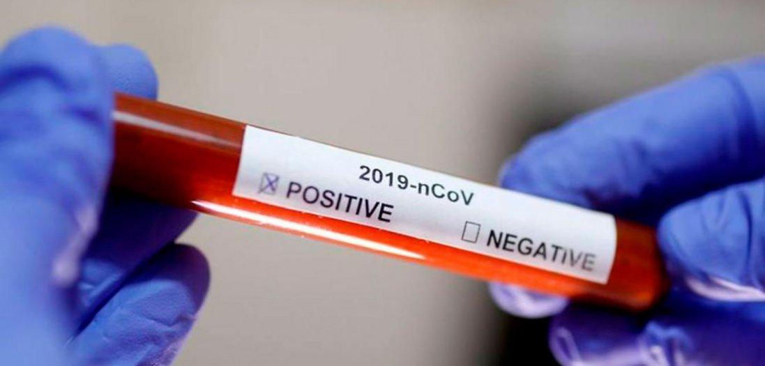 У Володимир-Волинському районі виявили двох хворих на коронавірус