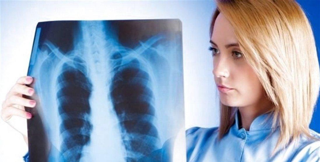 Україна на межі спалаху  туберкульозу. Коли почнеться нова епідемія