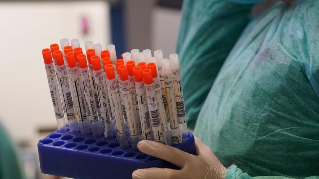 27 нових випадків за добу: де на Волині виявили хворих на коронавірус