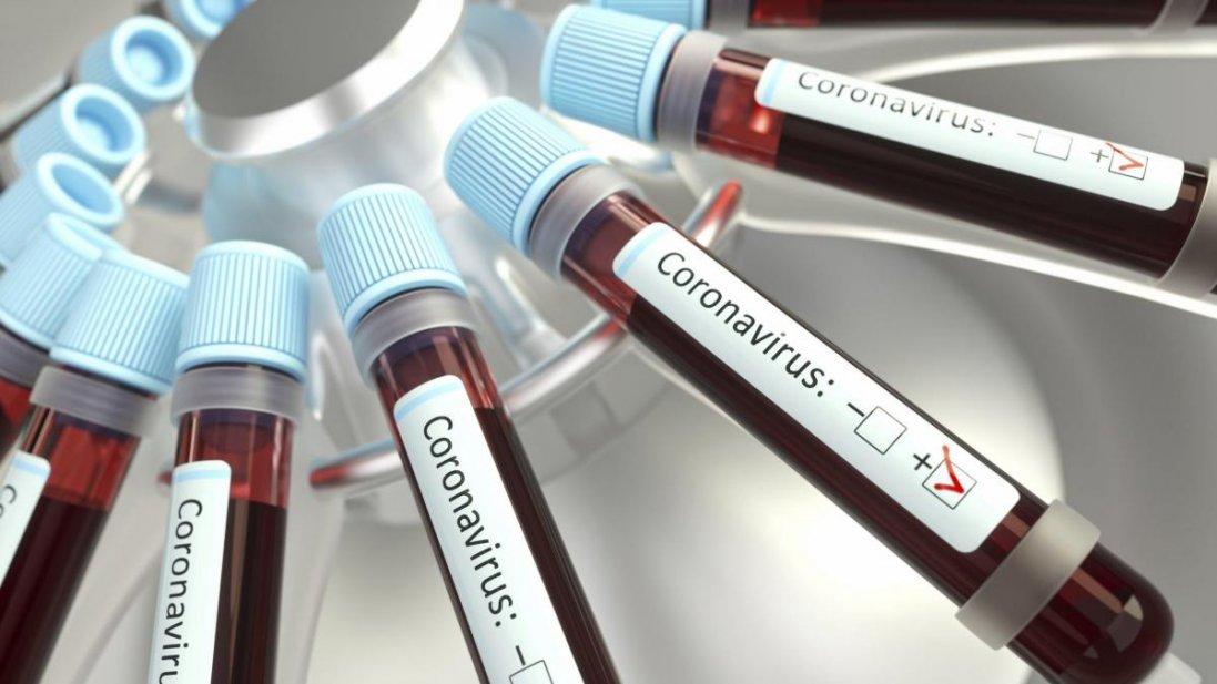 Порушували карантин: на Одещині зафіксували рекордний спалах коронавірусу