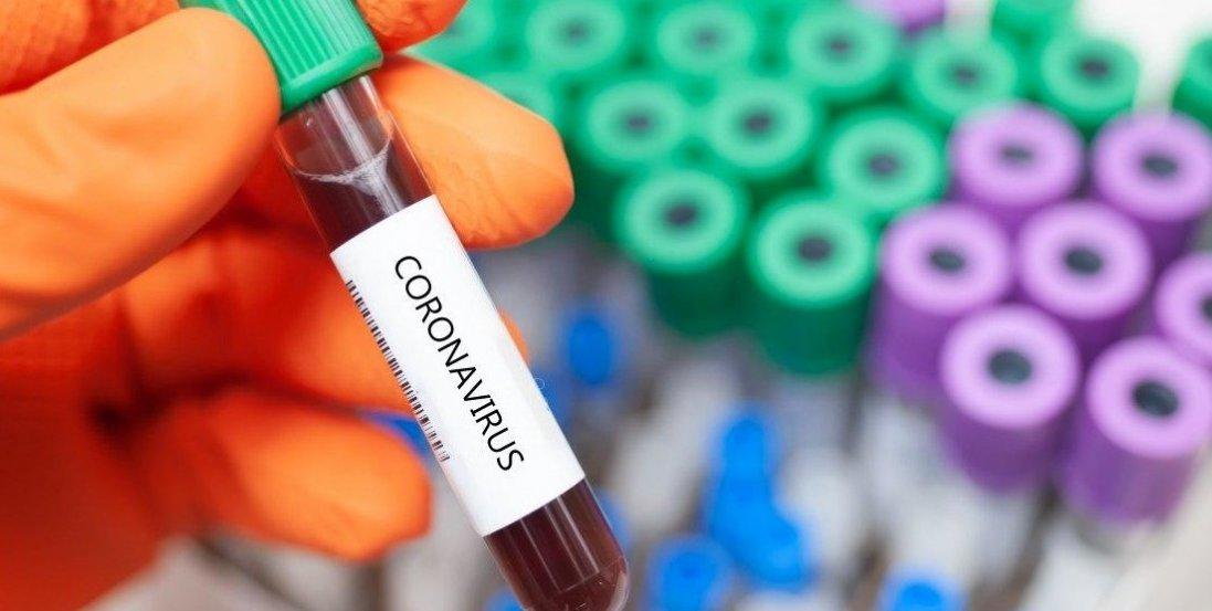 Коронавірус на Волині: 24 нових випадки за добу (ситуація в районах)
