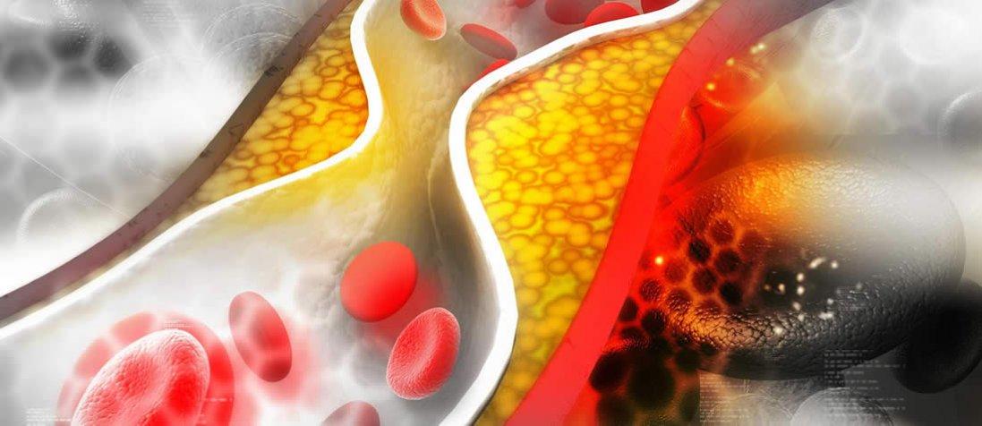 Чому підвищується холестерин?