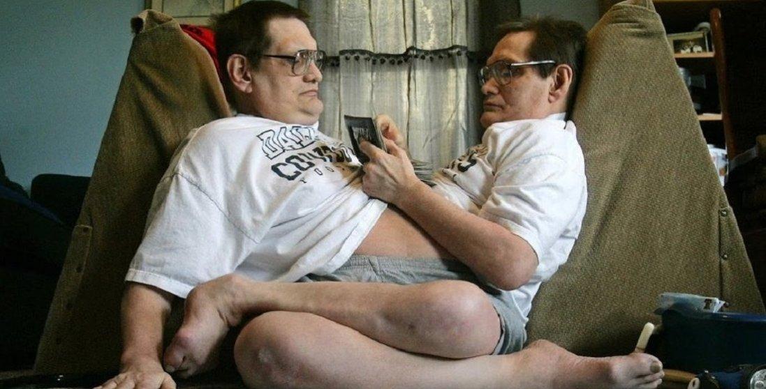 Померли найстаріші сіамські близнюки в світі: цікаві факти з їхнього життя