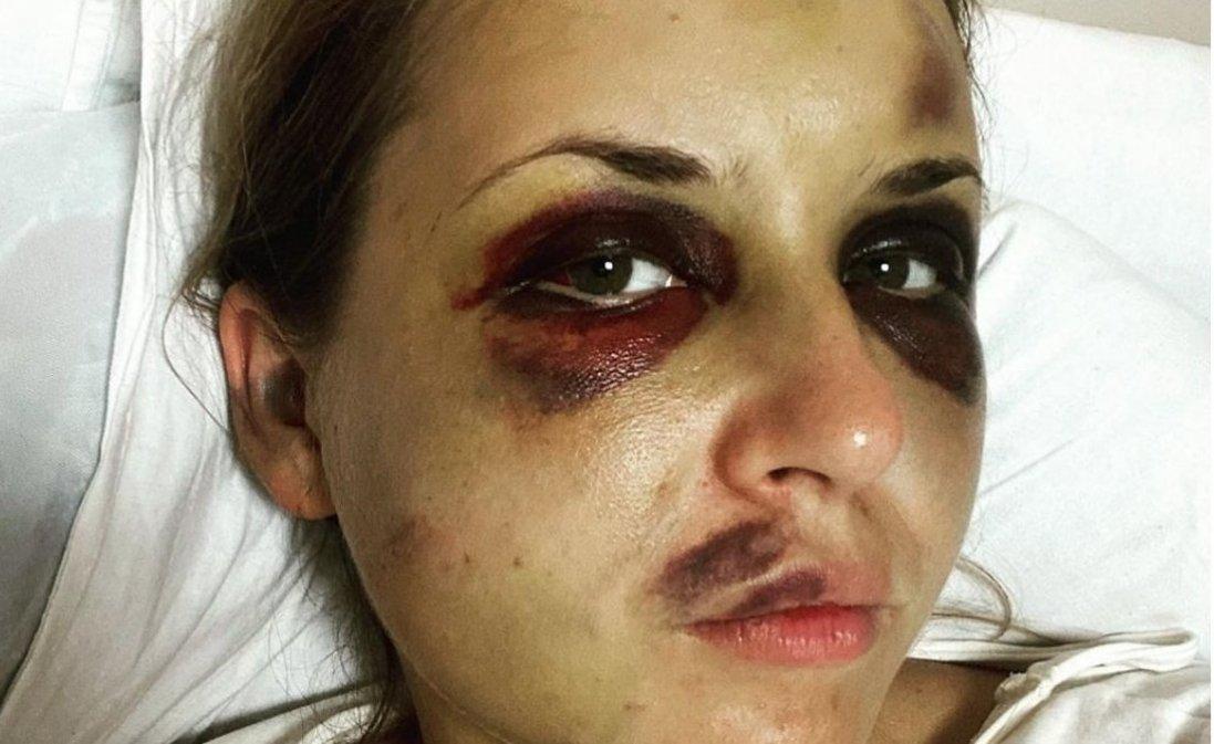 Побита в потязі телеведуча розповіла про проблеми з психікою сина