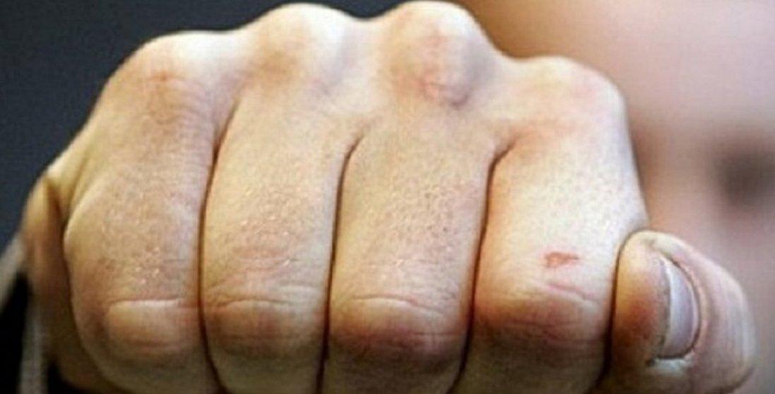 У Луцьку жорстоко побили 20-річного хлопця: що відомо