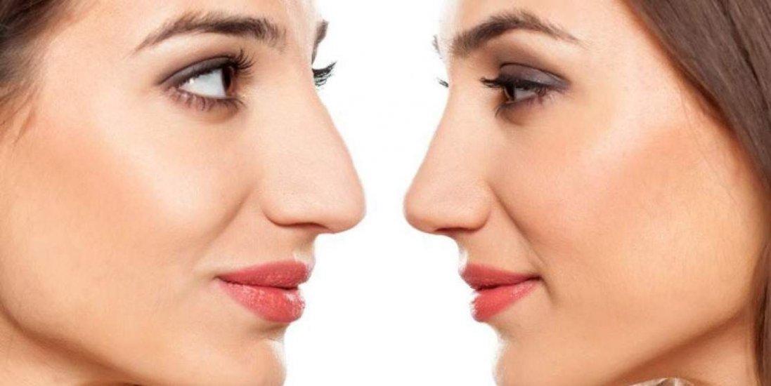 Новий спосіб змінити форму носу без операції