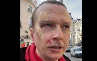 У Києві побили Майкла Щура