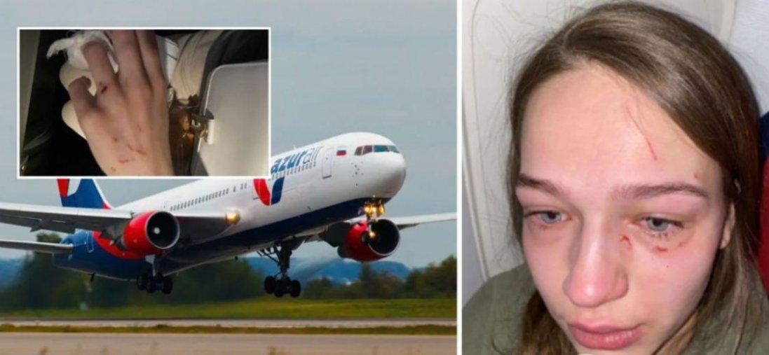 «Роздряпали обличчя і відгризли ніготь», – деталі побиття українки в літаку