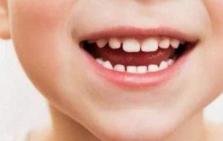 Сняться зуби: який сон найжахливіший