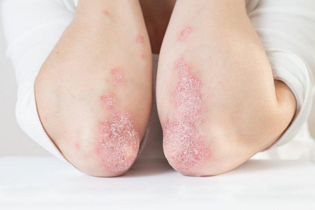 Навіть банальна застуда може викликати цю невиліковну хворобу. Частина ІІ