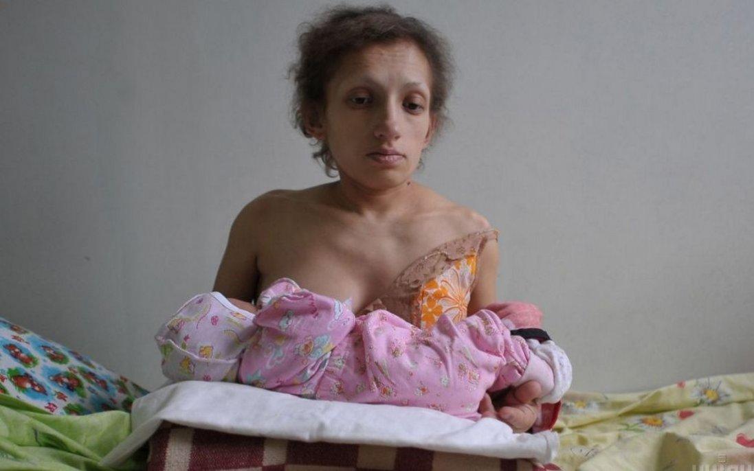 У Червонограді померла найнижча в Україні мама: жінка мала зріст 96 см